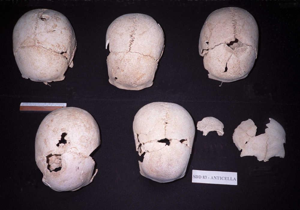 Crani trapiantati