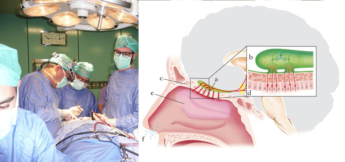 Sassari | Covid, danni gravi al tessuto olfattivo da uno studio della struttura complessa di Chirurgia maxillo-facciale dell'Aou